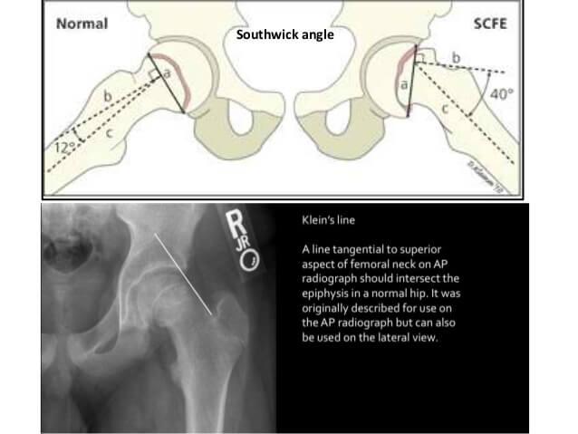 Southwick angle and Klein's line SCFE