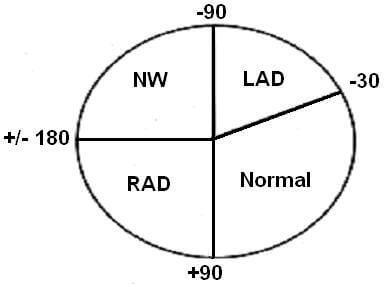 ecg axis
