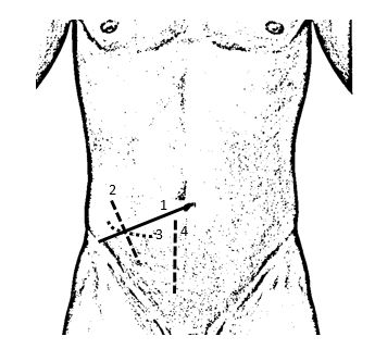 appendectomy incisions