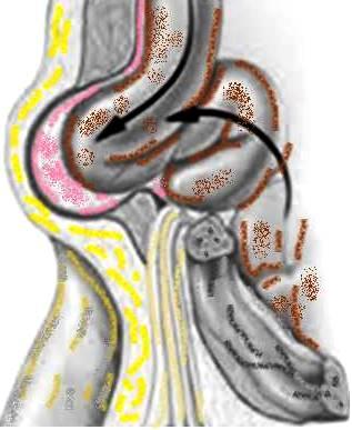 groin hernia