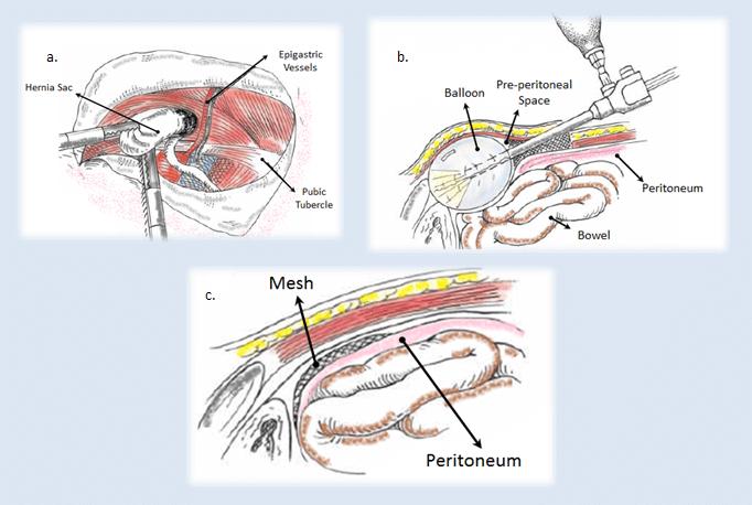 laparoscopic repair of hernia