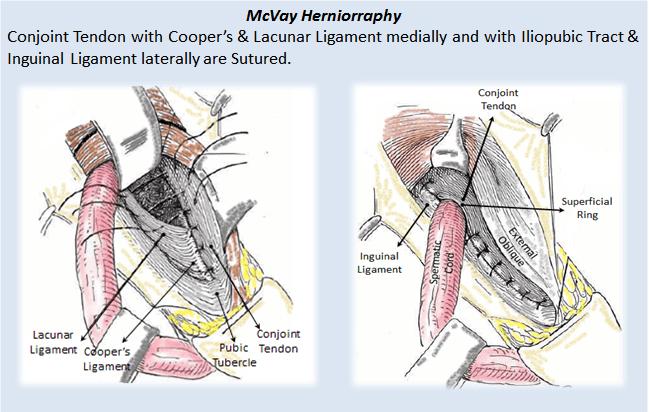 mcvay herniorraphy