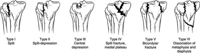 Schatzker classification of tibial plateau fracture