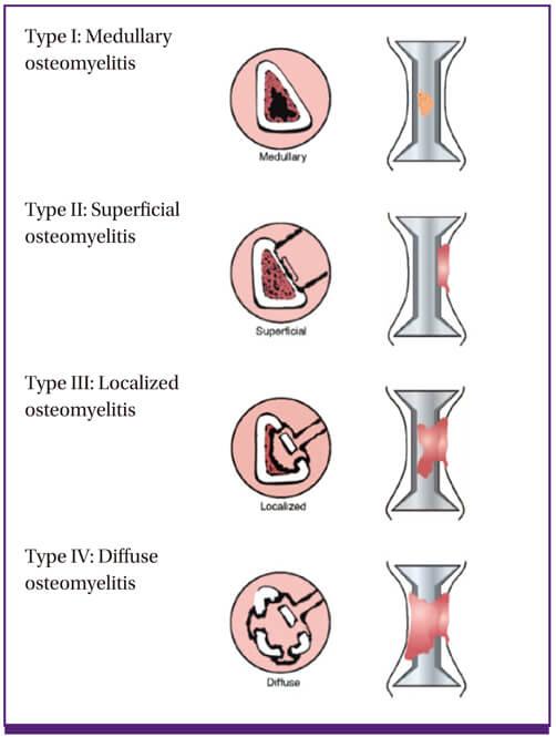 cierny mader chronic osteomyelitis