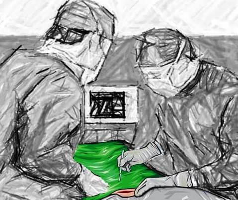 SOP surgical patient