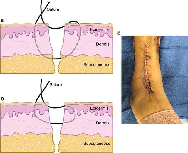 allgower donati suture