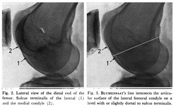lateral femoral condyle sulcus