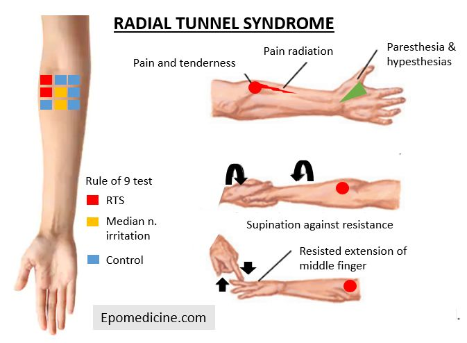 Radial tunnel syndrome tests