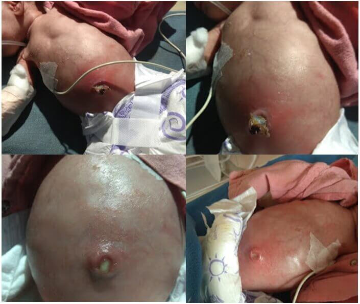 umbilical infection neonate shock