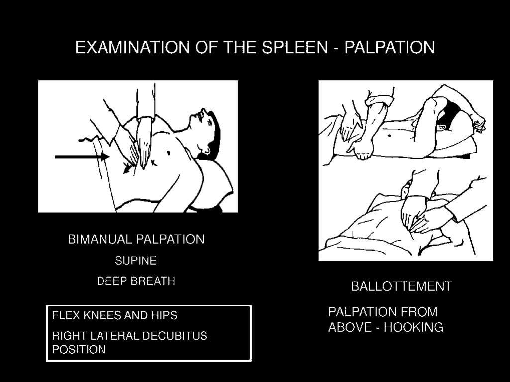 spleen examination