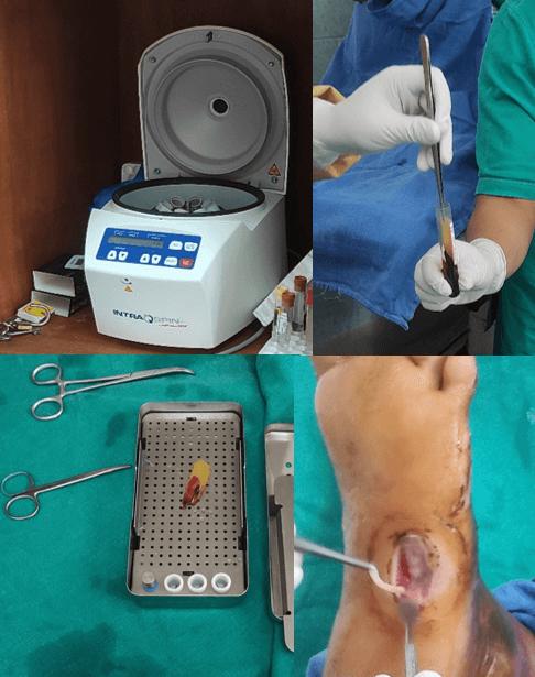 L-PRF chronic wound