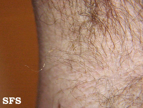 trichomycosis axillaris