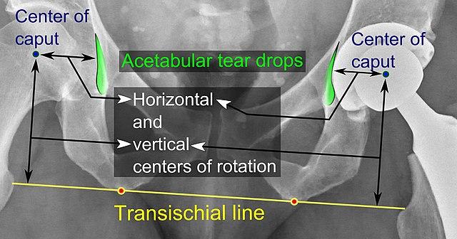 femoral head center