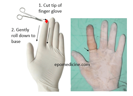 finger glove tourniquet