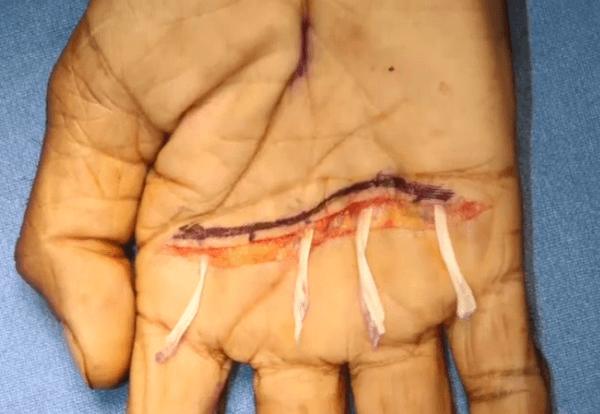 zancolli-lasso pocedure claw hand