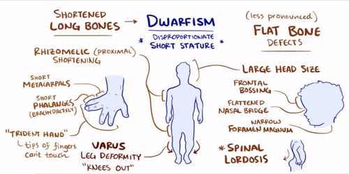 Achondroplasia mnemonic